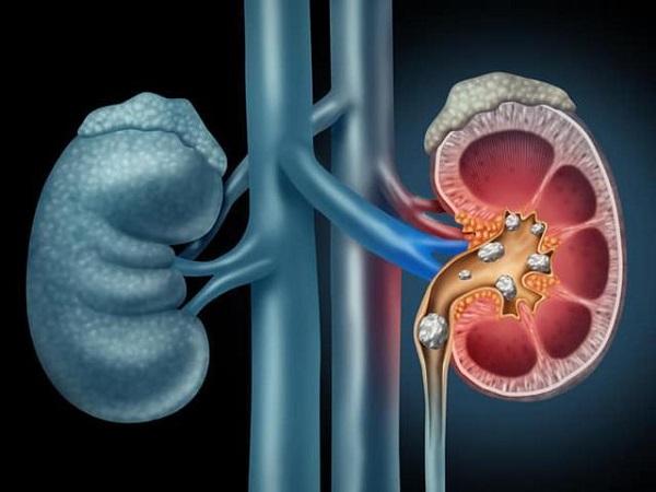 Đông trùng hạ thảo hỗ trợ điều trị sỏi thận
