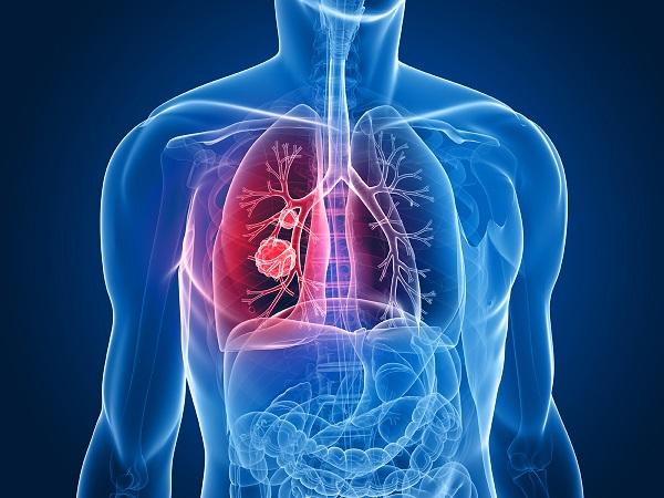 Đông trùng hạ thảo hỗ trợ điều trị bệnh COPD hiệu quả