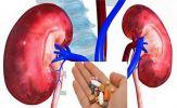 Người tổn thương thận: Lưu ý đặc biệt khi dùng thuốc