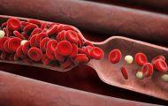 Cảnh giác xuất huyết khi dùng thuốc