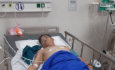 Nút mạch cứu sống bệnh nhân bị vỡ u gan