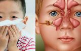 Viêm xoang không chỉ là bệnh của người lớn