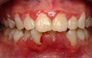 Muốn khỏe răng, tránh xa thuốc lá điện tử