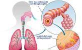 Chanh - thuốc chống viêm, giảm ho