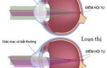 Nhận biết và phòng ngừa chứng loạn thị