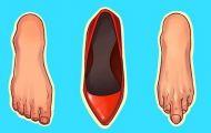 6 loại giày dép gây hại nghiêm trọng cho cơ thể nhưng ai cũng sở hữu