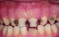 Sâu răng sữa ở trẻ trước tuổi tới trường là hơn 90%, chuyên gia nói gì?