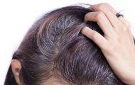 4 giải pháp hàng đầu ngăn ngừa tóc bạc sớm